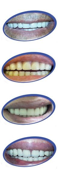 מדהים הוספת שן בתותבת | אורי רז קומיטאו- המרכז לשיניים תותבות NV-45