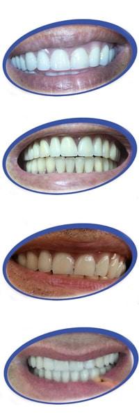 להפליא הוספת שן בתותבת | אורי רז קומיטאו- המרכז לשיניים תותבות UL-46