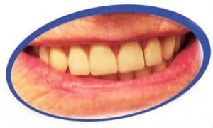 שיניים תותבות עד הבית