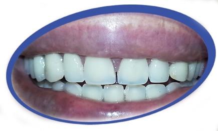 טכנאי שיניים עד הבית