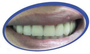 שיניים תותבות גמישות