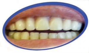 שיניים תותבות מחירים