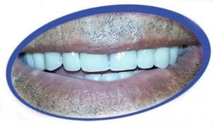 טכנאי שיניים אומן