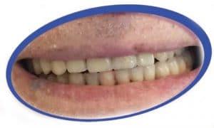 חידוש שיניים תותבות