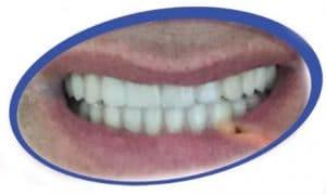 ריפוד שיניים תותבות