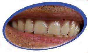שיניים תותבות חלקיות