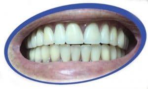 שיניים תותבות על שתלים