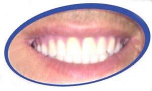 טכנאי שיניים לתותבות