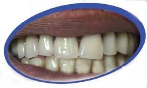 טכנאי שיניים בפתח תקוה