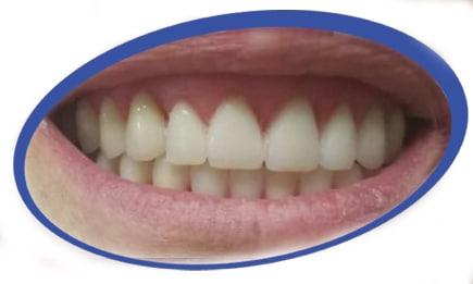 שיניים תותבות יפות