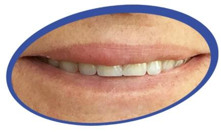 שיניים תותבות לדוגמא
