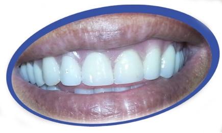שיניים תותבות נוחות