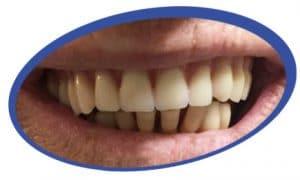 שיניים תותבות קלות