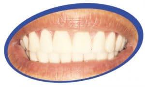 שיניים תותבות במראה טבעי