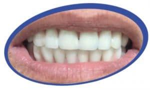 שיניים תותבות על גבי שתלים