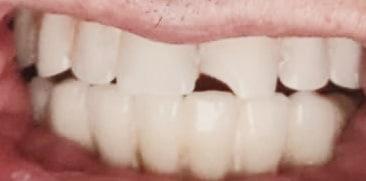 תיקון שיניים תותבות