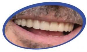 תמונות של שיניים תותבות