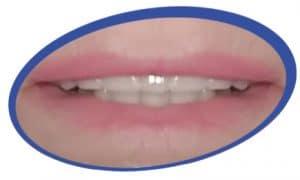 שיניים תותבות תמונות
